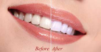 Cosmetic Dentistry Dumfries