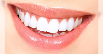 Natural Teeth Whitening Ideas Dumfries