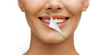 Teeth Whitening Treatment Dumfries