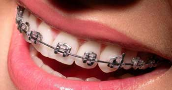 Orthodontics for Children, Teens & Adults