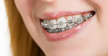 Can Adults Get Braces?