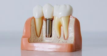 Post Care Instructions For Your Dental Implants | Dumfries