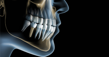 You Have The Option Of Replacing Your Lost Tooth With Dental Implants