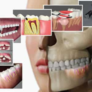 Dental PE Videos at Fredericksburg Virginia