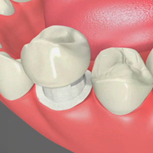 Dental Crowns Fredericksburg Virginia