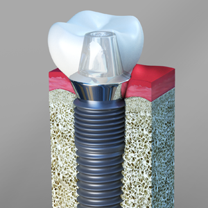 Dental implants Fredericksburg Virginia