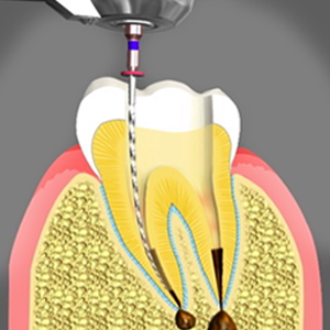 Root Canal Treatment in Dumfries